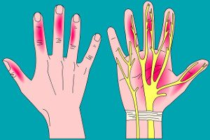 Acupuncture Carpal Tunnel - Acupuncture Acupressure Points